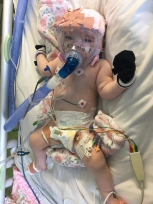 Miracle baby survives Coronavirus and Open heart Surgery